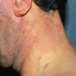 genetic skin conditions