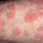 pics of genitle warts