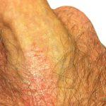 psoriasis on buttocks