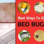 bugs bites that blister