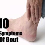 gout in finger pictures
