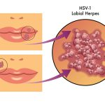 herpes type 1 picture