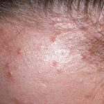 follicle infection