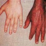hemochromatosis skin