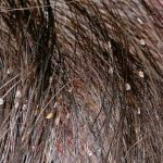 adult head lice