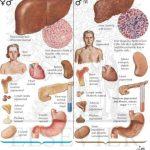 hemochromatosis pictures