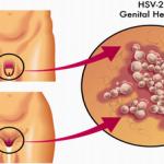 genital sores not herpes