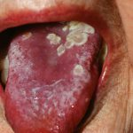 herpes on tongue picture