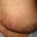 herpes lesions