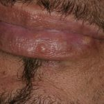herpetic cold sore