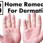atopic dermatitis treatments