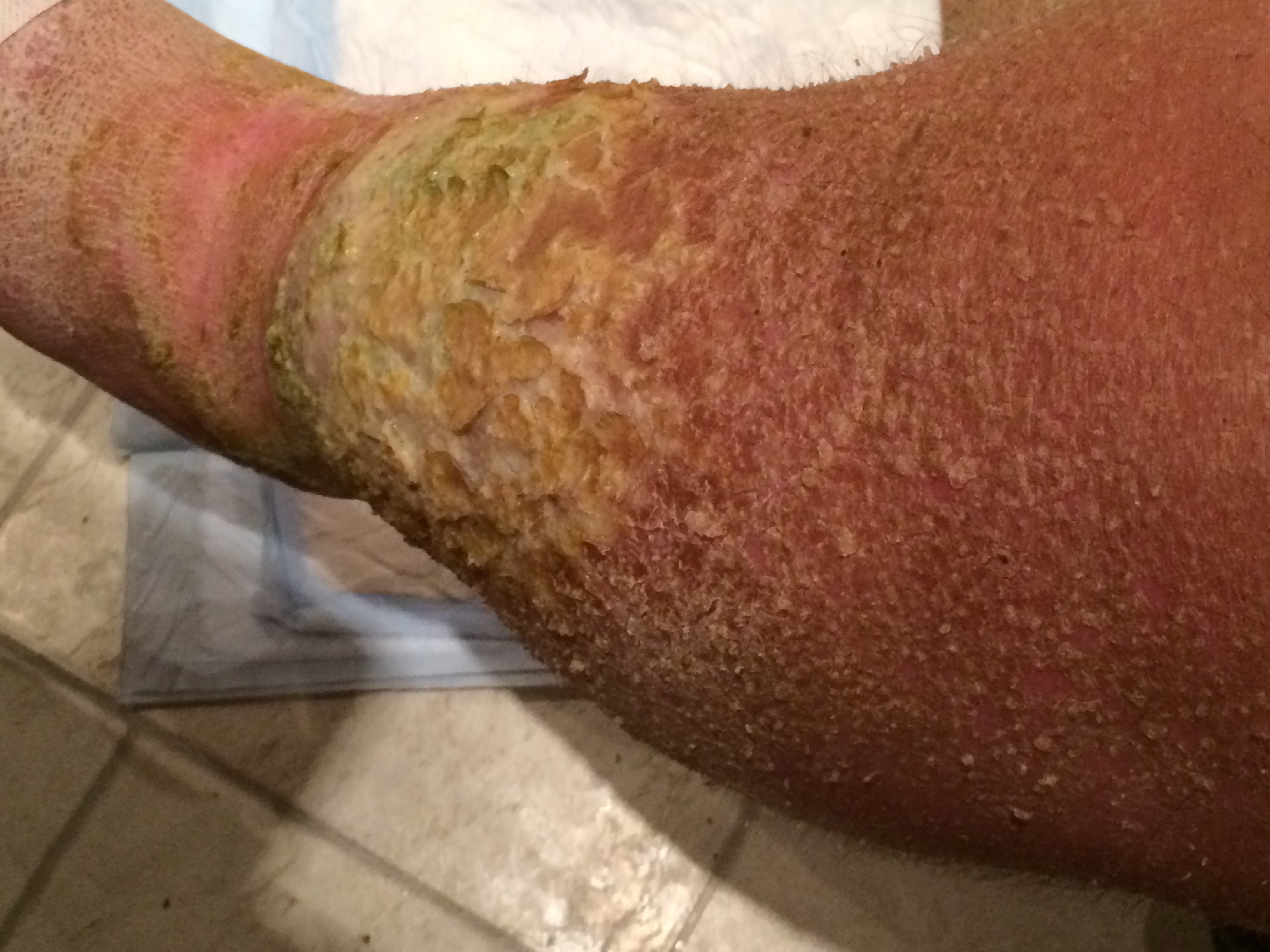 Flaky Skin On Legs Pictures Photos