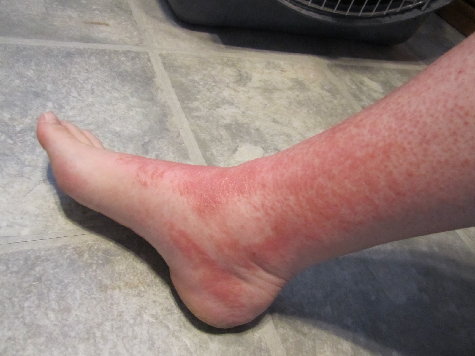 Red Bumps On Ankles Pictures Photos