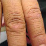 dermatomyositis causes