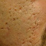 oral antibiotics for acne