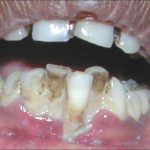 necrotizing periodontal disease