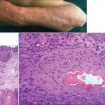 lymphohistiocytic infiltrate