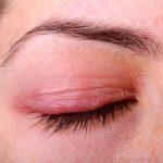 red eyelid
