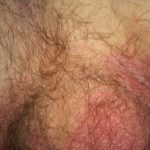 rash in genital area
