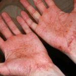 eczema on feet