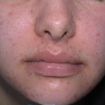 post inflammatory hyperpigmentation treatment