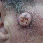 keratoacanthomas