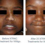excimer laser treatment