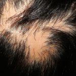 lichen planopilaris scalp