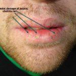 actinic keratosis lip