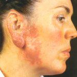 lupus vulgaris