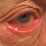 herpes on the eyelid