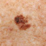 superficial spreading melanoma pictures