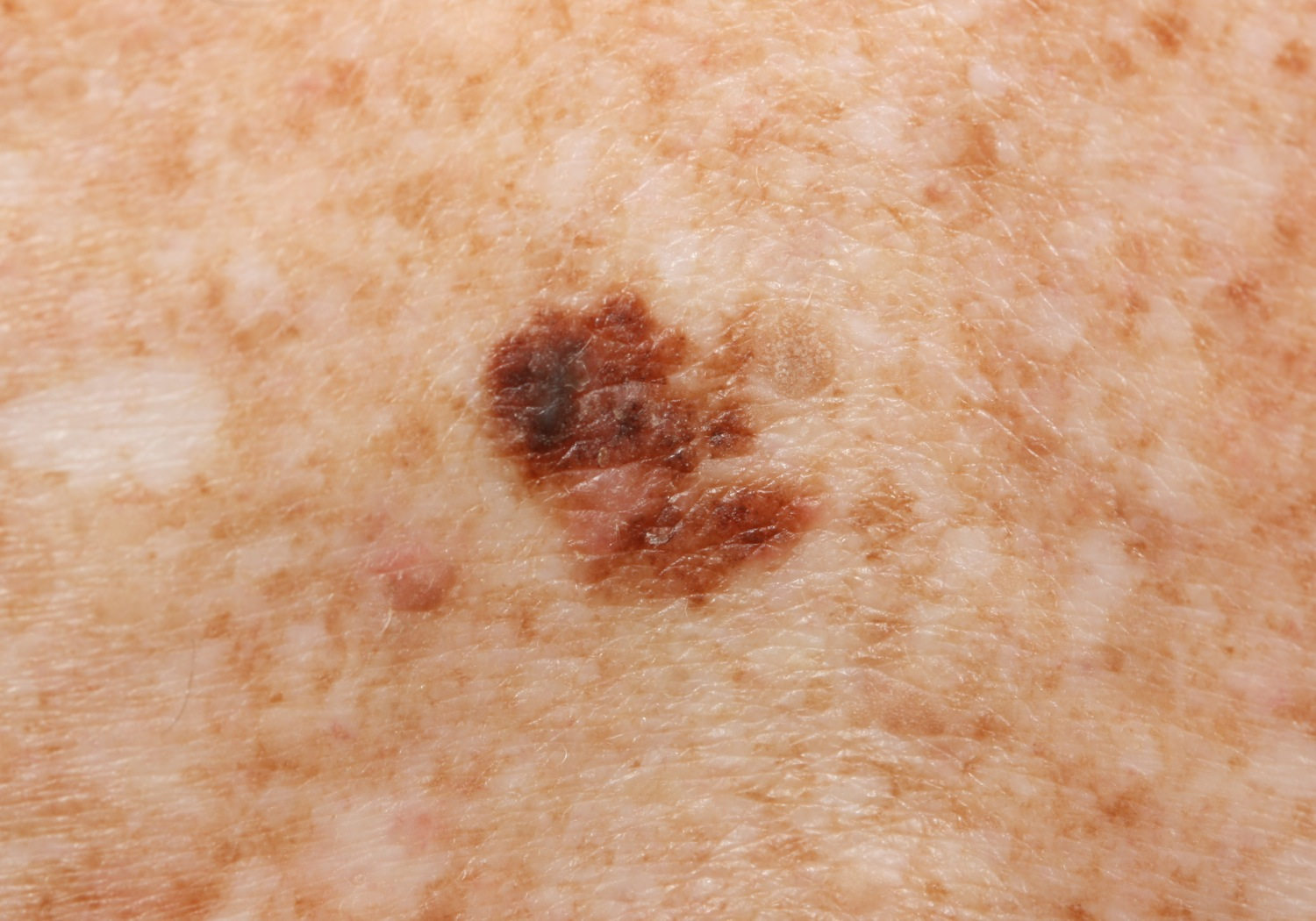 Superficial Spreading Melanoma Pictures Pictures Photos