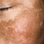 treatment for melasma