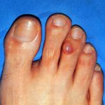 myxoid cyst toe