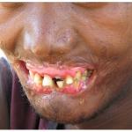 necrotizing periodontal diseases