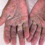 scabies on palm