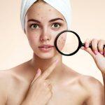 skin problem on face