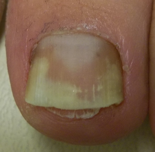 Toenails Lifting Off Nail Bed Pictures Photos