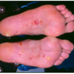 types of bacterial infection