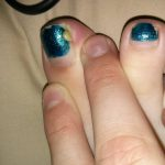 toe infection pus