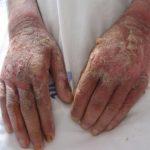 pellagra symptoms