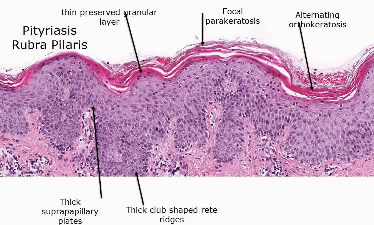 Orthokeratosis Pictures Photos