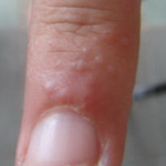 rash in between fingers