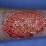 pyoderma gangrenosum picture
