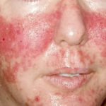 facial rashes
