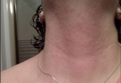 Raised Red Lesions on Forehead Stress Rash On Chest