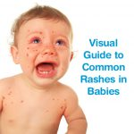 heat rash in newborns