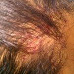 itchy rash on scalp
