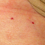 small red spots on chest
